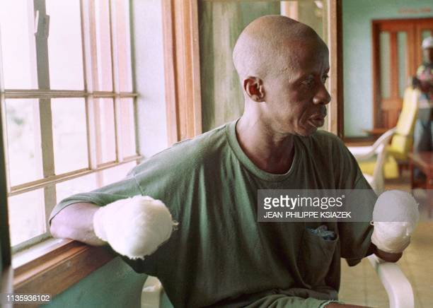 A peasant from Sierra Leone waits for care in a hospital in Freetown 26 May with both his hands cut off by partisans of the military junta ousted by...