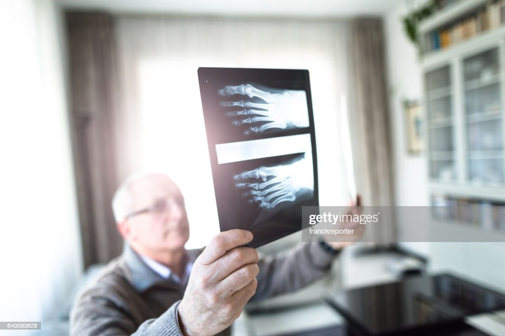 Pensive doctor looking the xray exams at home : Stock Photo