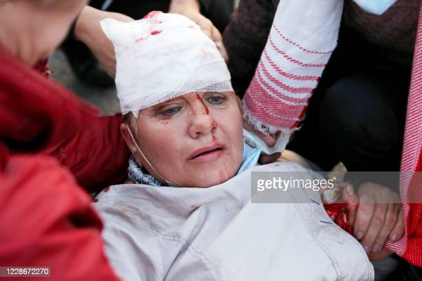 People provide medical care to an injured woman during an opposition rally after the presidential inauguration in Minsk on September 23 2020 Belarus...