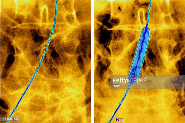 Percutaneous Transluminal Angioplasty Performed By Introducing A Baloon Catheter Into A Stenotic Artery And Then Inflating It In Order To Dilate The...
