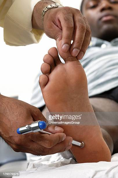GP performing plantar reflex test on young male patient GP performing plantar reflex test on young male patient by running end of his tendon hammer...