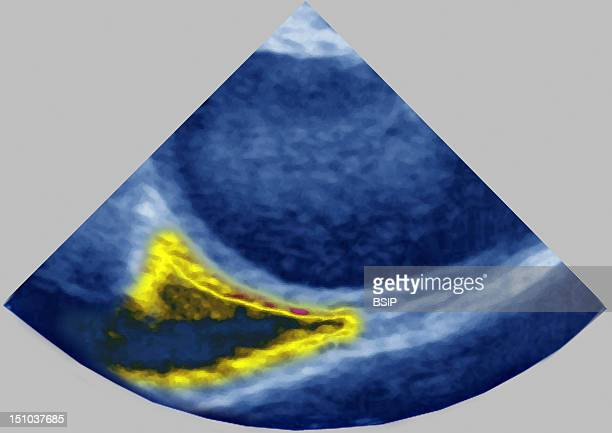 Pericardial Effusion Caused By A Rupture Of The Aorta Cardiac Transversale Transesophageal Echography
