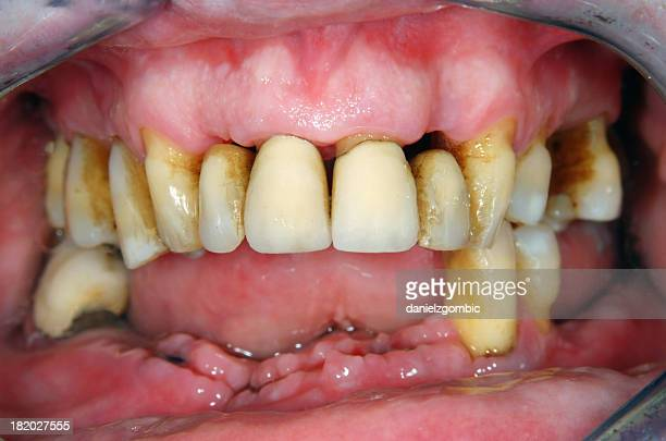 periodontitis - gingivitis stock photos and pictures