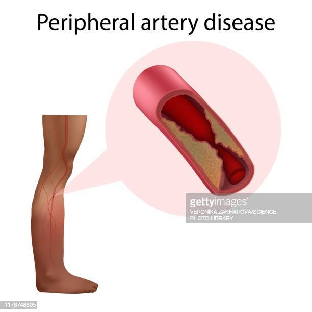 peripheral artery disease, illustration - artery stock pictures, royalty-free photos & images