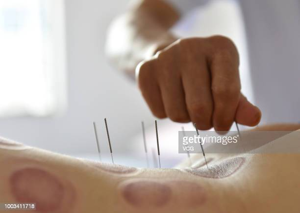 A person gets acupuncture therapy on the back at a hospital on July 17 2018 in Hefei Anhui Province of China Sanfu refers to three 10day periods that...