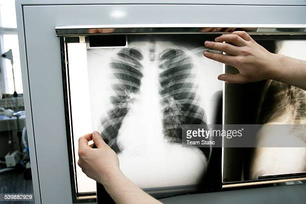 person holding up chest x-ray to light box - lightbox stock pictures, royalty-free photos & images