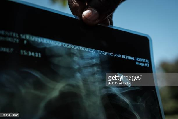 TOPSHOT A person holds an Xray image showing twoyearsold Mary Shantel Sarafine who got a stray bullet on her shoulder as she played in front of her...