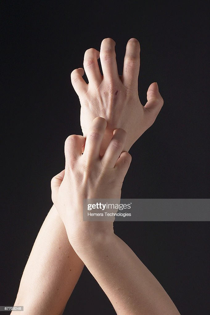 Person scratching arms : Stock Photo
