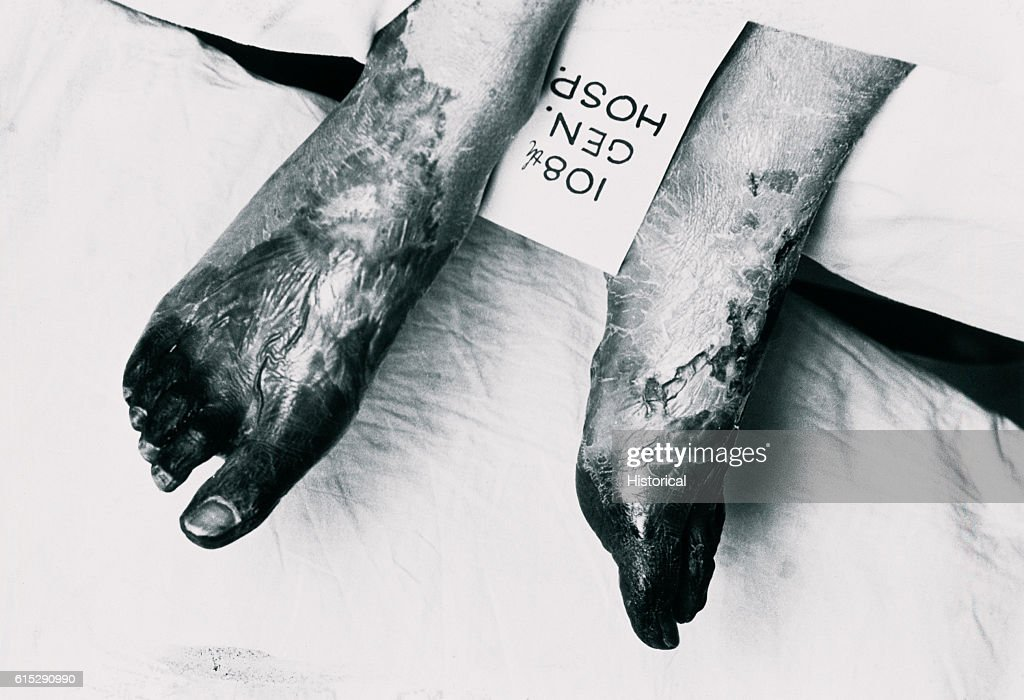 Gangrene Feet : News Photo