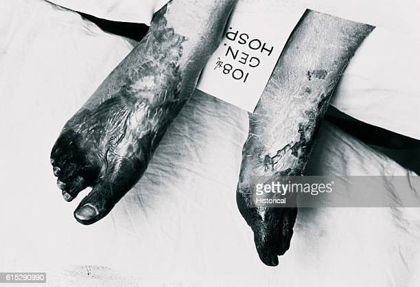 A person sits on bed at 108th General Hospital in San Miguel displaying his gangrenous feet