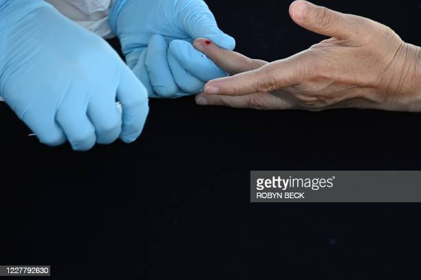 Person undergoes a finger prick blood sample as part of a coronavirus antibody rapid serological test on July 26, 2020 in San Dimas, California, 30...