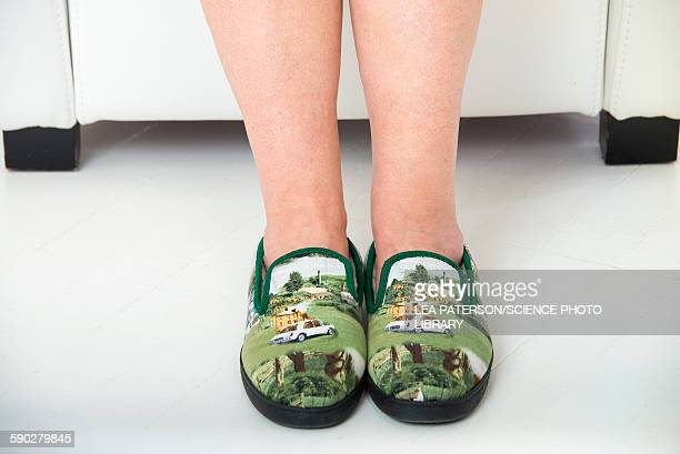 Person wearing slippers