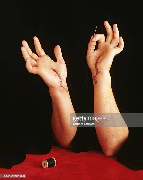 Person with stitches on hand, holding needle