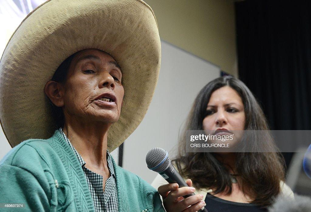 PERU-HUMAN RIGHTS-WOMEN-STERILIZATION : Fotografía de noticias