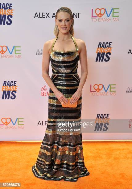 Peta Murgatroyd arrives at the 24th Annual Race To Erase MS Gala at The Beverly Hilton Hotel on May 5 2017 in Beverly Hills California
