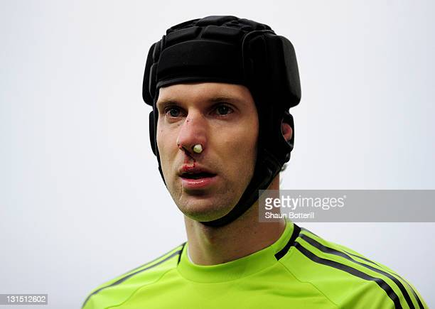 Petr Cech of Chelsea looks on after injuring his nose during the Barclays Premier League match between Blackburn Rovers and Chelsea at Ewood Park on...