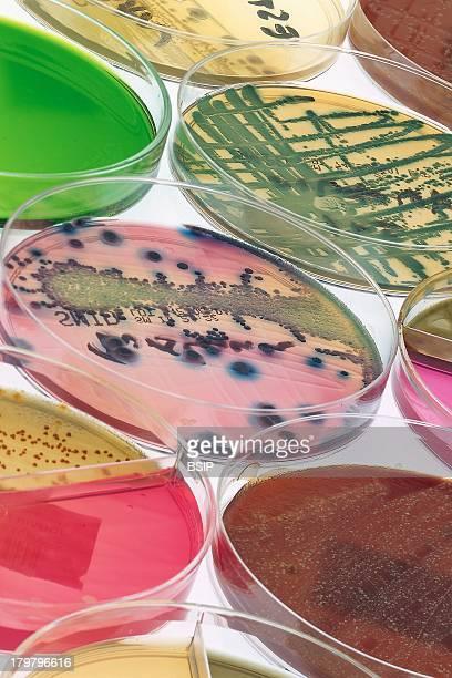 Petri Dish Citrobacter Freundi Staphylococcus Epidermis