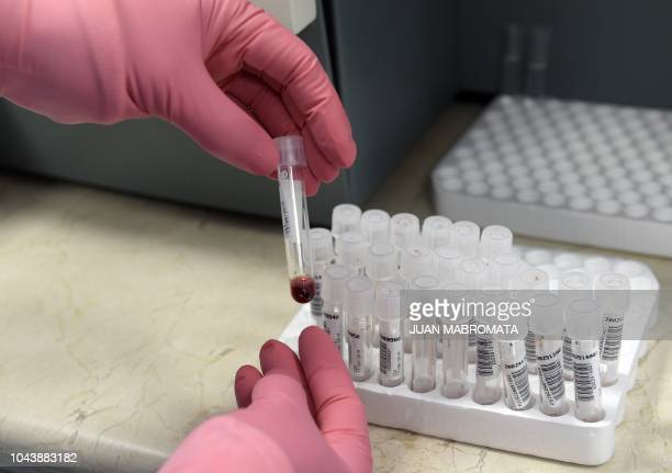 A PhD student tests blood samples in the lab of the Institute of Biomedical Research in Retroviruses and AIDS of the CONICET and Buenos Aires...