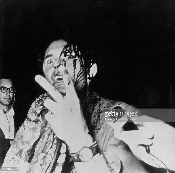 A photgrapher bleeding from a head wound given to him by police during the riots in Grant Park outside the 1968 Democratic National Convention gives...