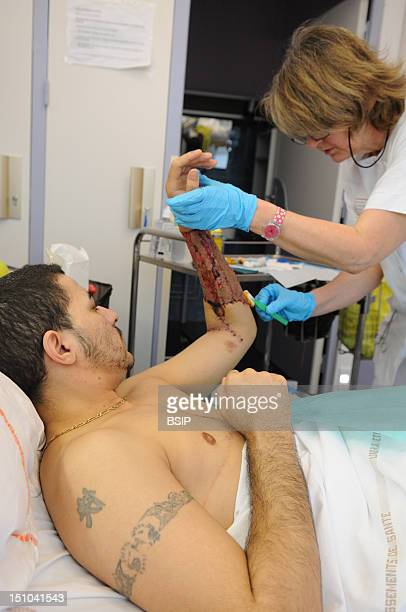 Photo Essay At Henry Gabrielle Hospital In Lyon, France. Department Of Urology. Postoperative Nursing Care Of Trans Man Patient After A Sex...