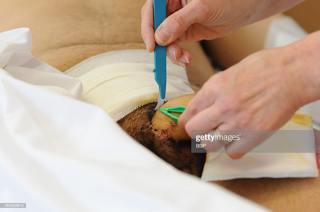 nurse dispensing care pictures getty images photo essay at henry gabrielle hospital in lyon department of urology postoperative