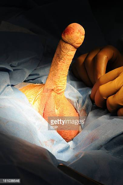 Photo Essay At Lyon Hospital Department Of Urology Phalloplastie Operation Of Plastic Surgery To Create A Phallus Required To Complete A Change Of...