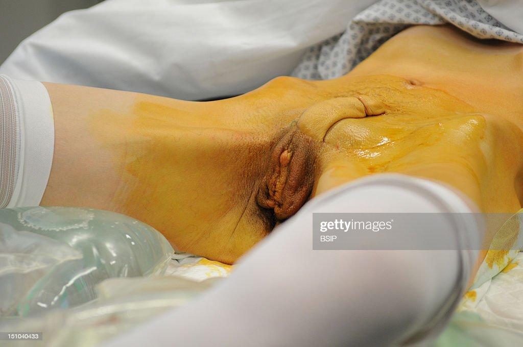 Phalloplasty : News Photo