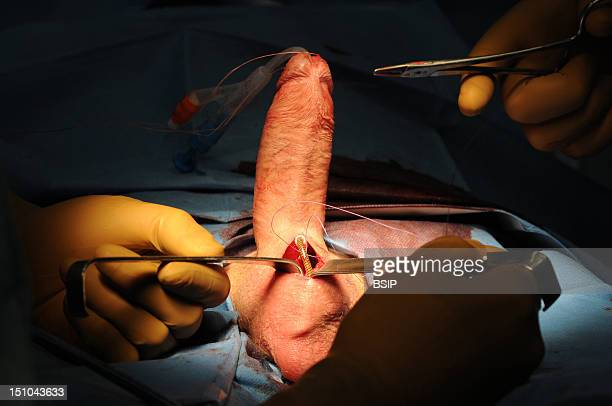 Photo Essay At Lyon Hospital. Department Of Urology. Surgical Treatment Of Erectile Dysfunction With A Penile Prosthesis. Test Of Erection With...