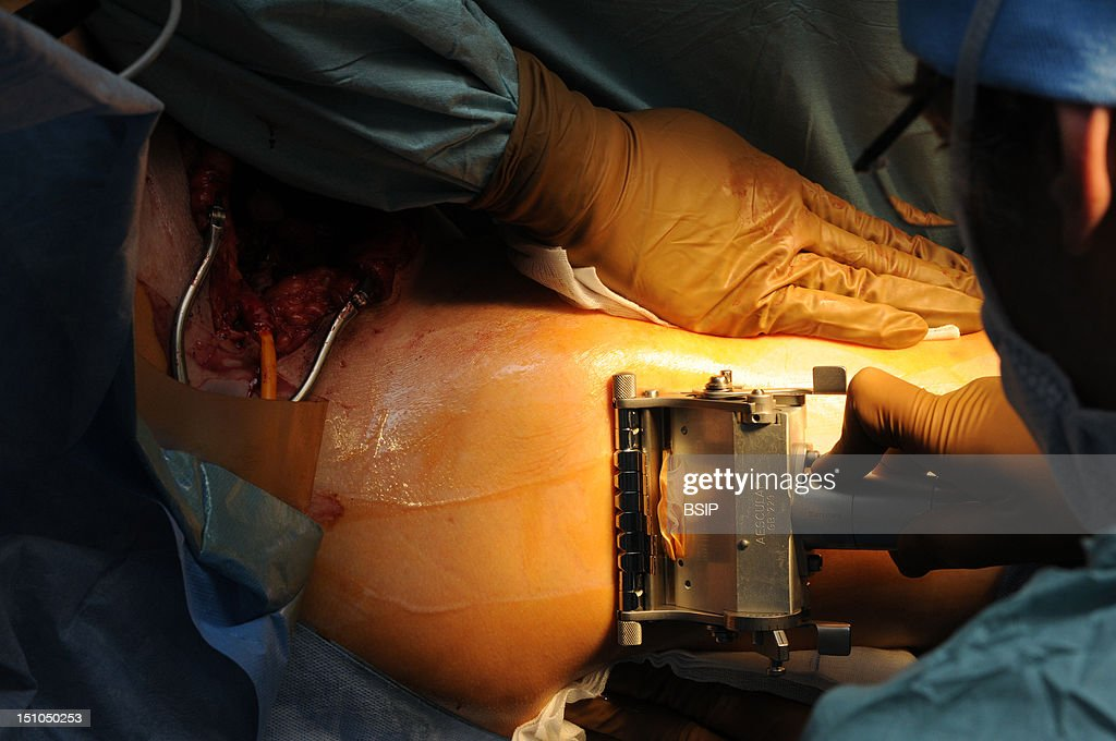 vaginoplasty pictures getty images photo essay at lyon hospital department of urology vaginoplasty operation of