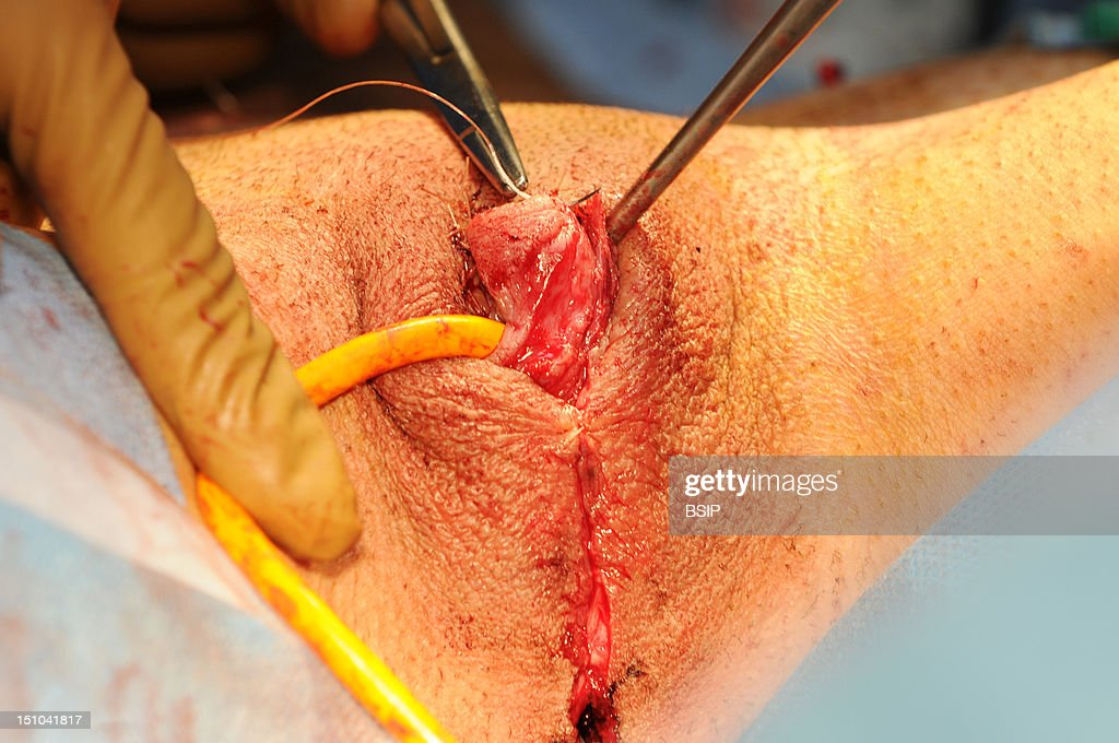 Hystero-Ovariectomy : News Photo