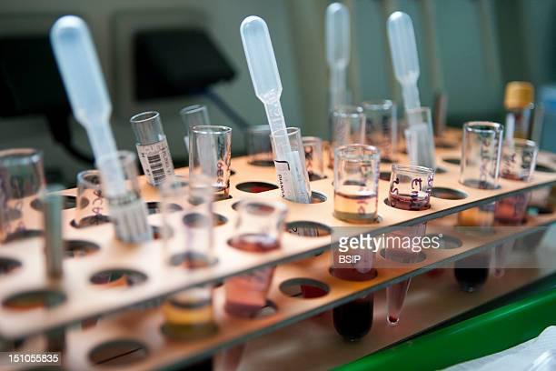 Photo Essay At Nice University Hospital Archet Hospital About Bone Marrow Donation Laboratory Of Histocompatibility Blood Samples