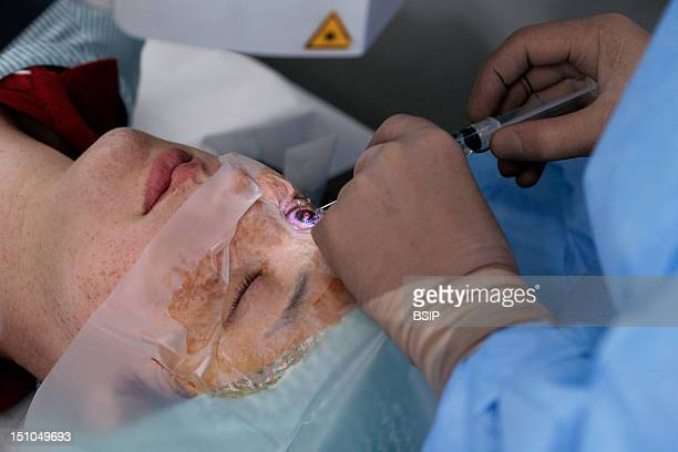 Photo Essay At Rouen Hospital France Laser Surgery For Nearsightedness In A First Time A Corneal Disk Thin Lamelle Of Cornea Is Cut Up By...