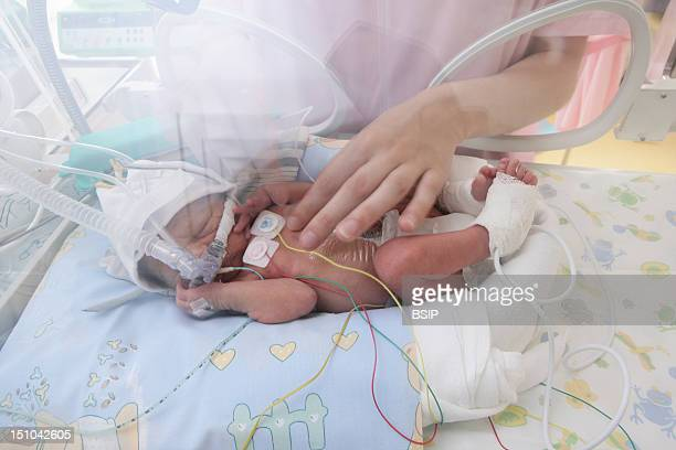 Photo Essay At The Hospital Of Meaux 77 France Department Of Neonatology Premature Baby In An Incubator The Surveillance Of This Premature Baby Is...