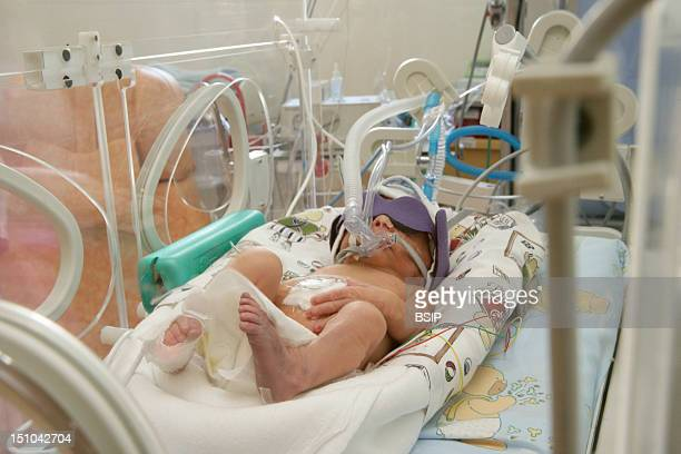 Photo Essay At The Hospital Of Meaux 77 France Department Of Neonatal Resuscitation A Premature Baby Before A Session Of Phototherapy
