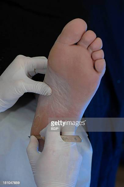 Photo Essay From Health Professional's Office Photo Essay In A Podiatry Surgery Cares Of Podiatry Removal Of A Tyloma On The Heel