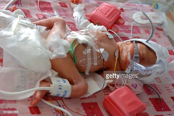 Photo Essay From Hospital Civil Almhouse Of Lyon Maternity Of Croix Rousse Hospital Unit Of Neonatology France