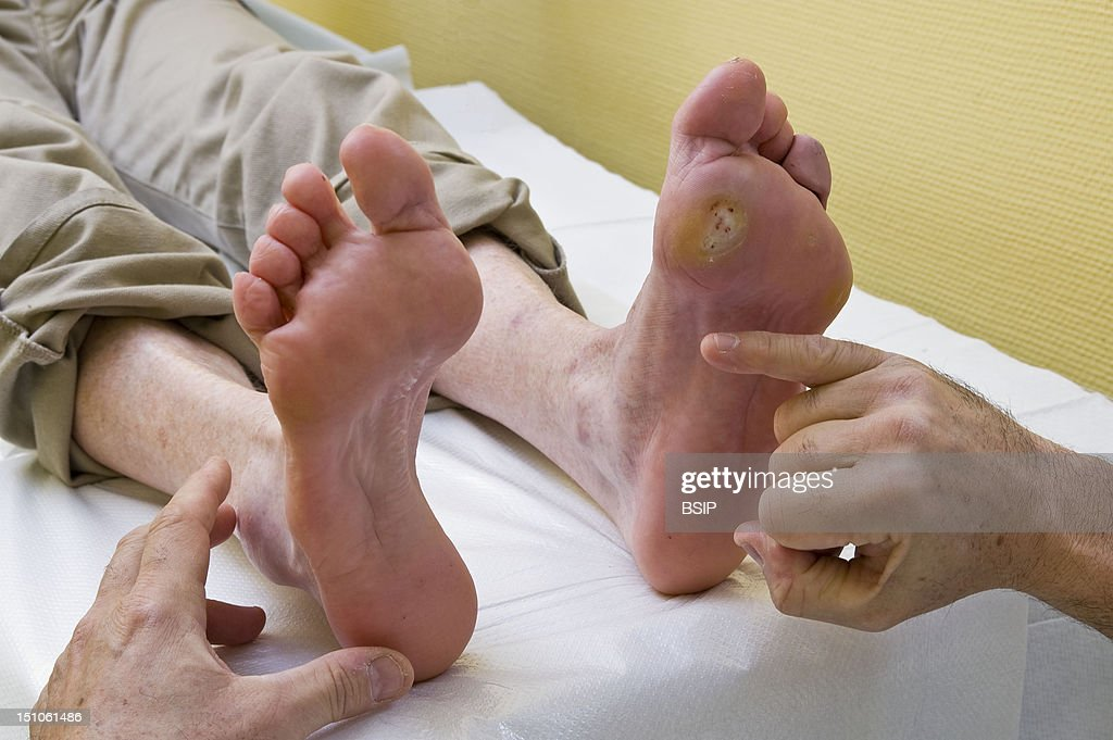 diabetic foot pictures getty images photo essay from hospital department of diabetology endocrinology of st louis hospital in paris