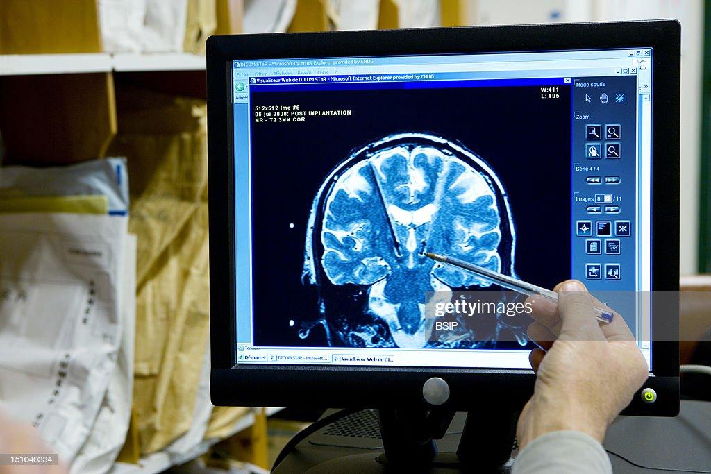 Brain Electrostimulation, Nmr : News Photo