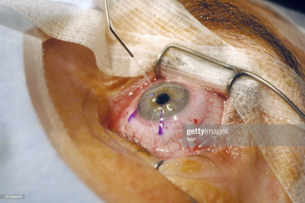 lasik pictures getty images photo essay from hospital lasik surgery for shortsightedness eye surgery using the lasik laser