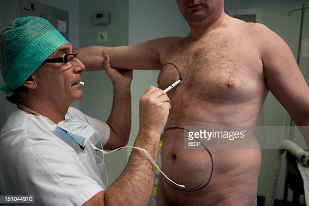 Photo Essay In Aesthetic Surgery Liposuction