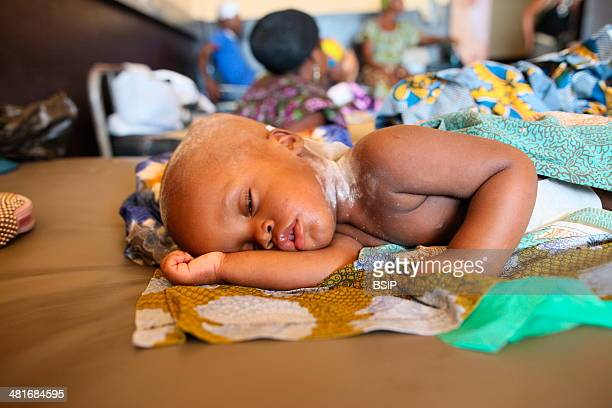 Photo essay in Lome Togo Child in hospital Department of neurosurgery