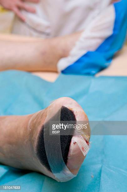Photo Essay In The Department Of Diabetology At Saint Louis Hospital Paris France Transmetatarsal Amputation On A Diabetic Foot Following A Diabetic...