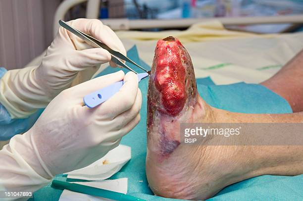 Photo Essay In The Department Of Diabetology At Saint Louis Hospital, Paris, France. Transmetatarsal Amputation With A Skin Graft On The Diabetic...