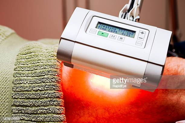 photodynamic therapy (pdt) treating skin cancer on leg - basal cell carcinoma stock photos and pictures