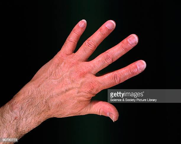 Photograph by John Lepine of the back of a man�s hand with the fingers outstetched