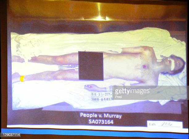 A photograph from the coroner of Michael Jackson's body is projected by the prosecution during Dr Conrad Murray's involuntary manslaughter trial at...