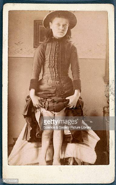 Photograph of a girl displaying legs deformed by rickets a disorder of infants and growing children that was common amongst the poor in the late 19th...