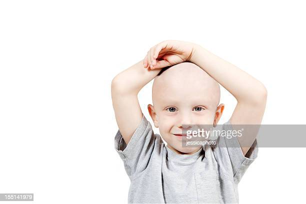 Photograph of a happy child undergoing chemotherapy