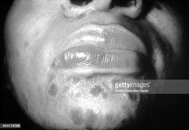 A photograph of a patient with secondary syphilis showing typical 'nickel and dime' lesions on the face 1971 A patient with typical 'nickel and dime'...