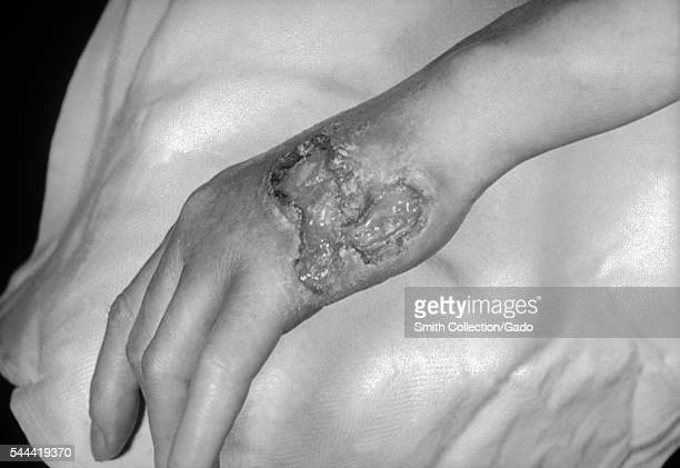 A photograph of a patient with tertiary syphilis resulting in gummatous lesions on the dorsal surface of the left hand 1971 Gummatous lesions due to...